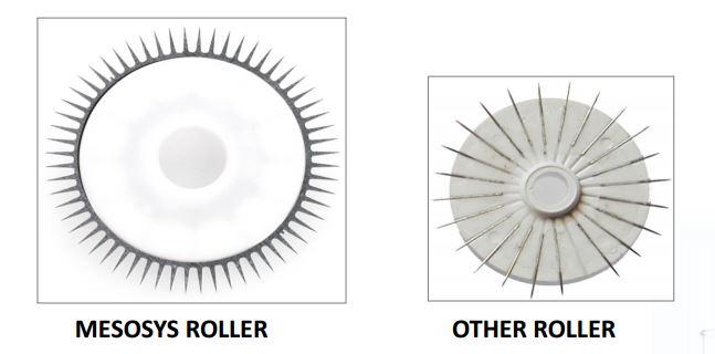 mesosys roller